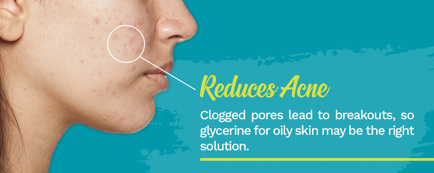 Glycerine Reduces Acne